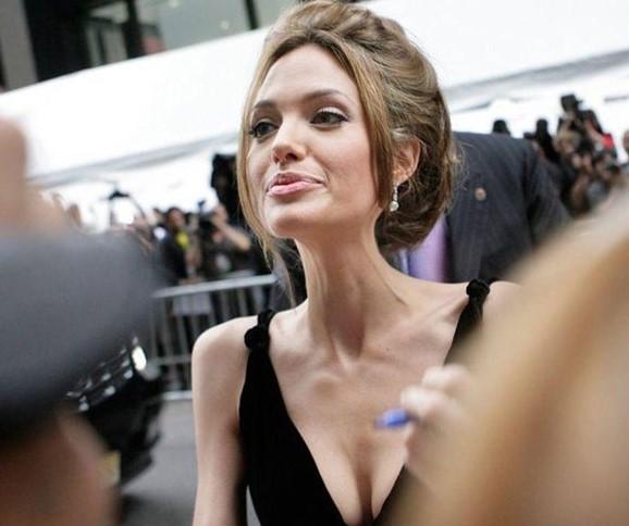 В последние месяцы Анджелина Джоли превратилась в скелет